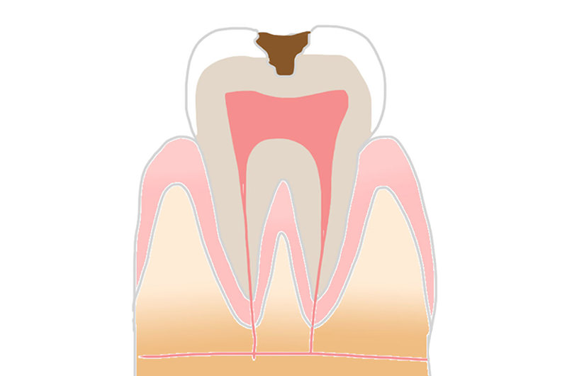 軽度から進行した虫歯