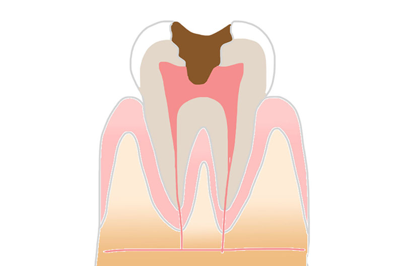 重度に進行した虫歯