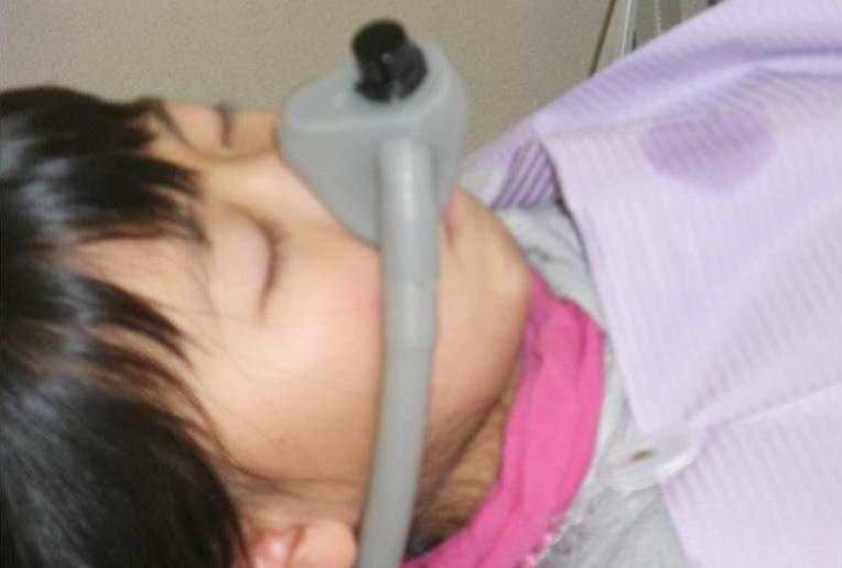 麻酔を使わず笑気ガスを使用