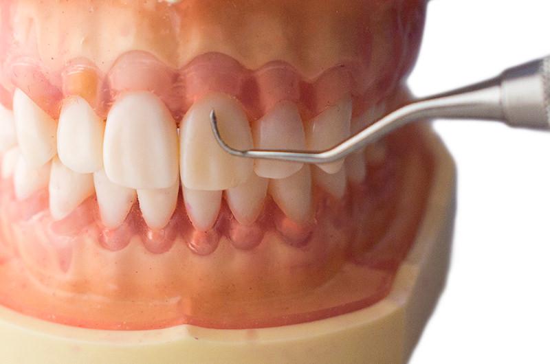 STEP① 歯石の除去(スケーリング)